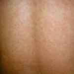 Esantema maculopapulare morbillo o altro?
